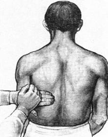 проверка симптома Пастернацкого